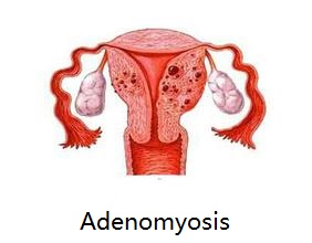 What is uterine adenomyosis.jpg